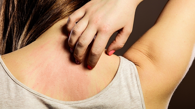 Hard Water Affect Your Skin, woman scratching her back